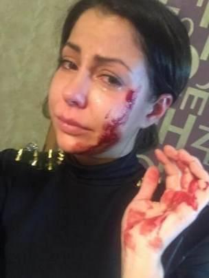 избитая Елена Беркова